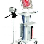 Digital Colposcope LEO-2100I
